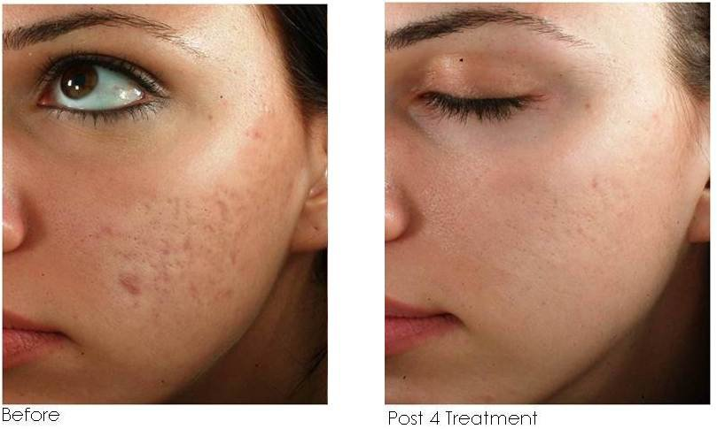 Now Offering Microneedling | Seasons Salon & Day Spa
